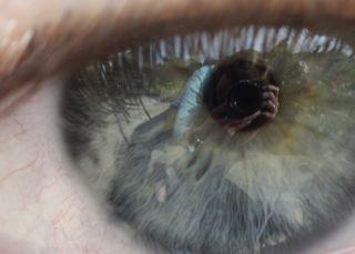 Max eye 2